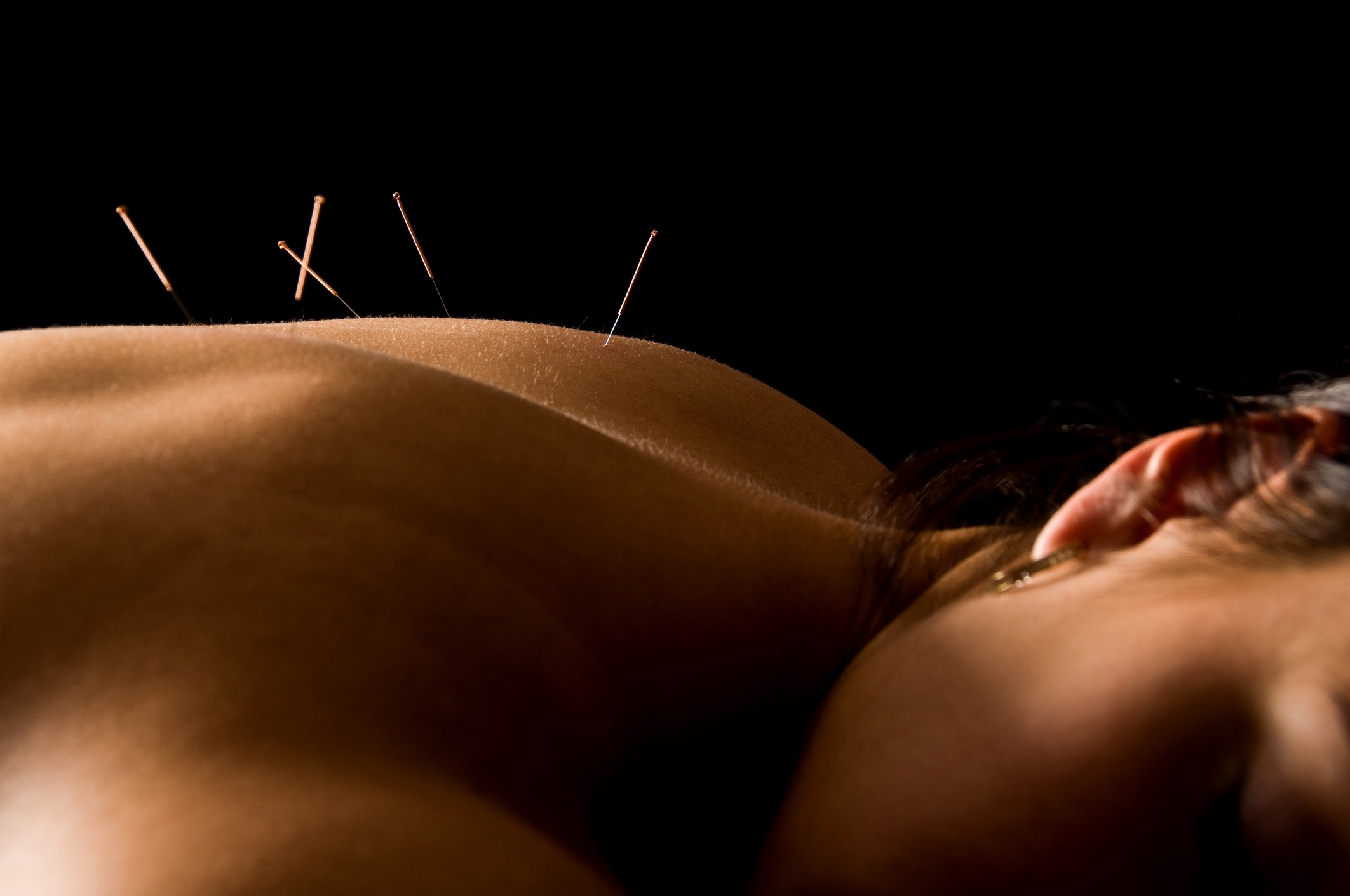 Acupuncture Back.jpg