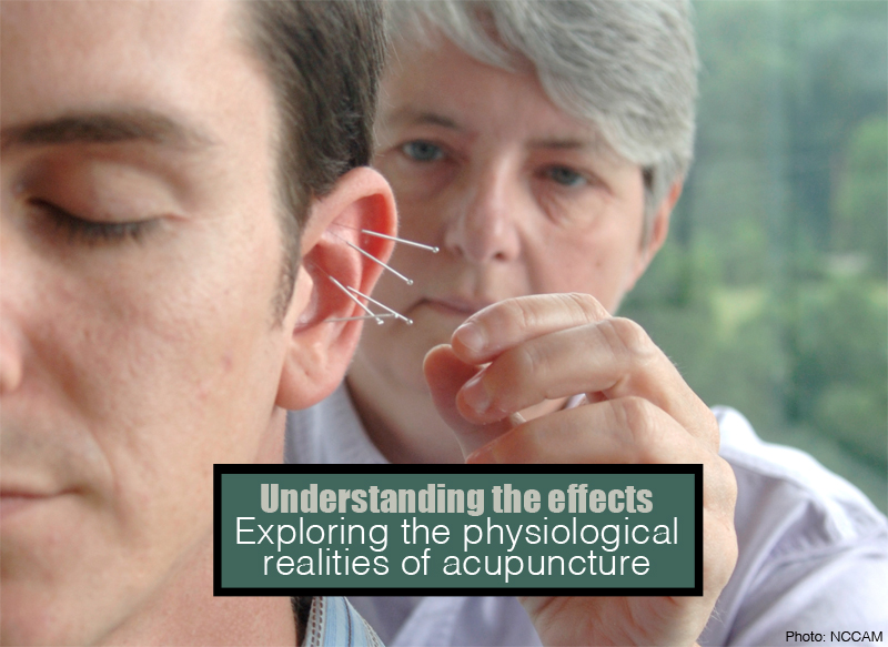 physiology of acupuncture